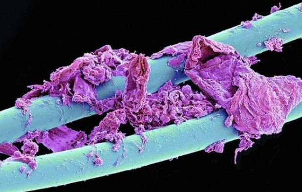 Microscopic image of used dental floss.jpg