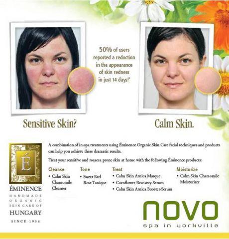 Sensitive Rosacea Facial.jpg