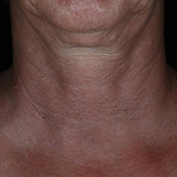 ALASTIN NECK BEFORE.jpg