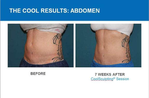 COOLSCULPTING RESULT.jpg