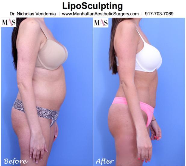 Liposuction 10R Side.jpg