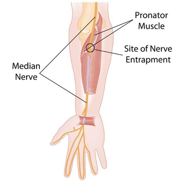 Median Nerve Pronator.jpg