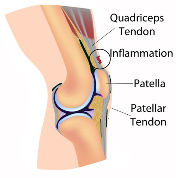 Patellar Tendon.jpg