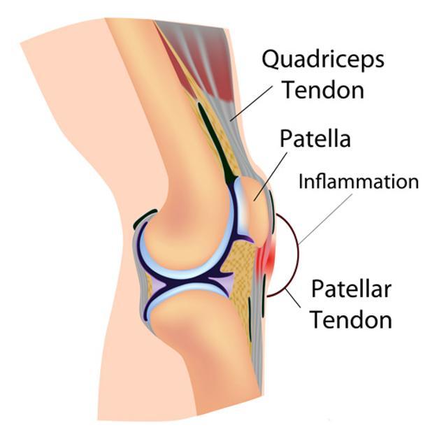 Patellar Tendon 2.jpg