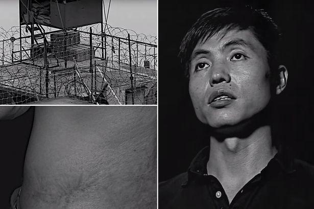 TEASER-Man-who-escaped-from-North-Korean-prison-camp-shows-torture-scars-and-reveals-horrific-conditions.jpg