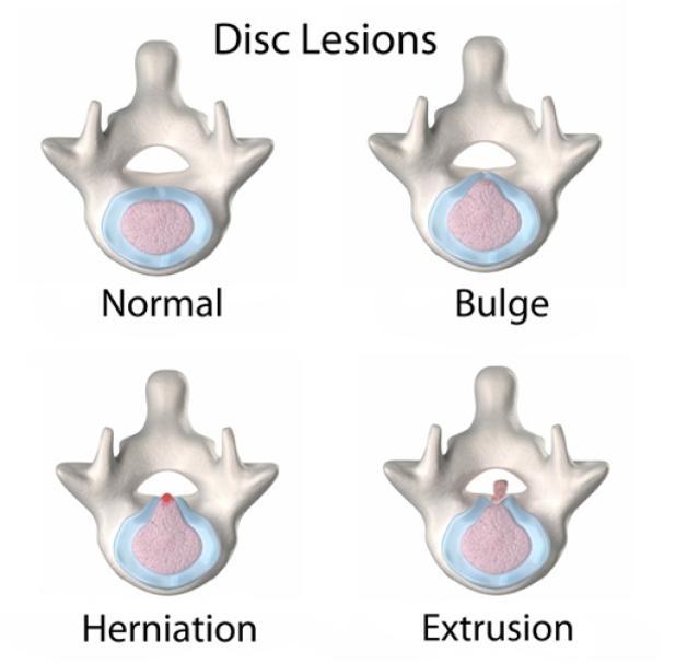 4 Disc lesions.jpg