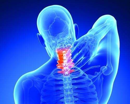 Neck-Pain1-e1437920751684.jpg